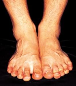 Rickets - a deforming bone disease caused by low Vitamin D